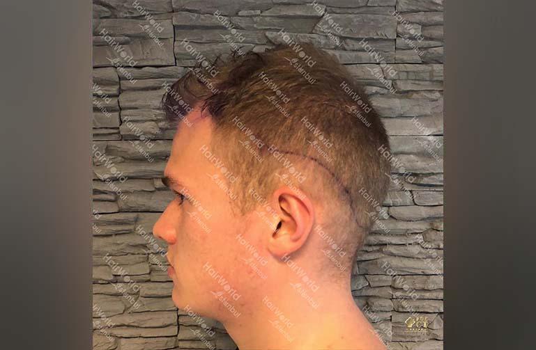 Ervaring HairworldIstanbul 5