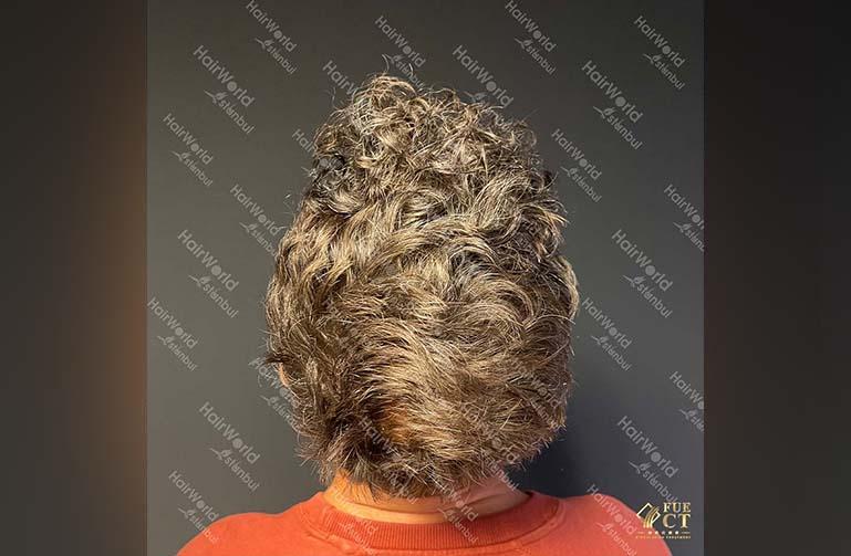 Ervaring HairworldIstanbul 10