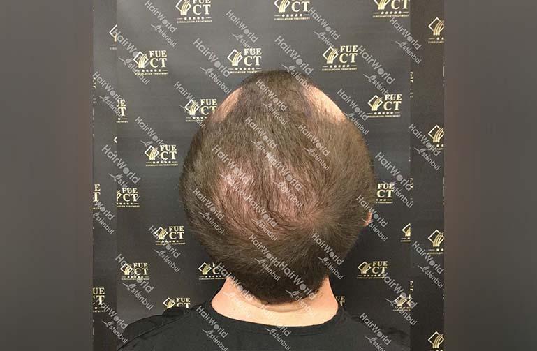 Ervaring HairworldIstanbul 11 2