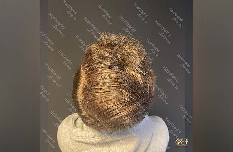 Ervaring HairworldIstanbul 12 2