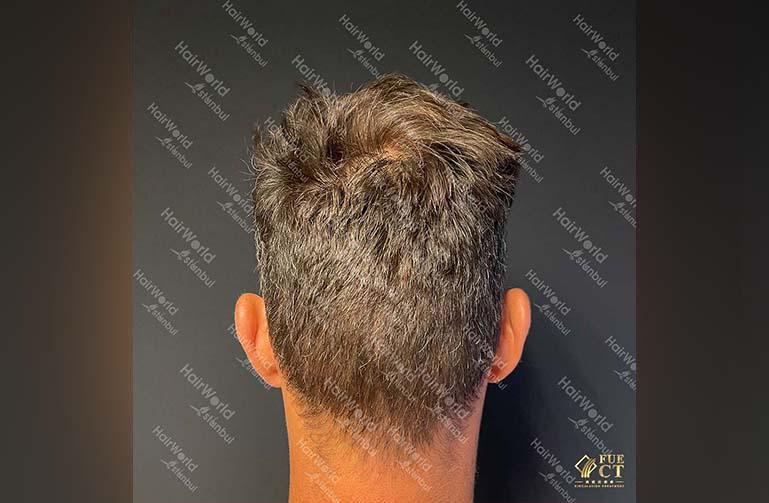 Ervaring HairworldIstanbul 12