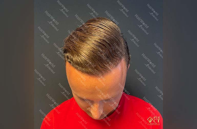 Ervaring HairworldIstanbul 4