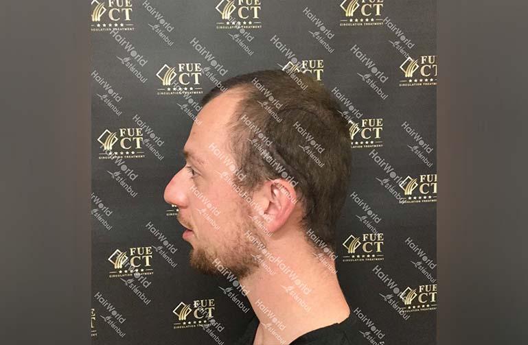 Ervaring HairworldIstanbul 5 2