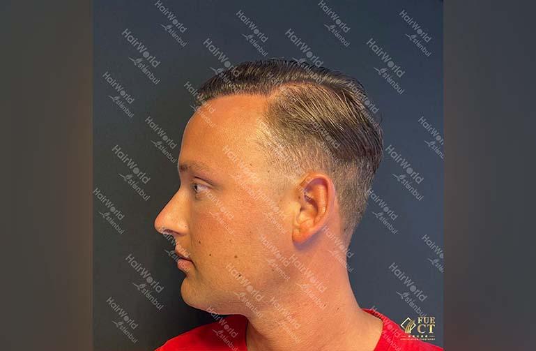 Ervaring HairworldIstanbul 8 1